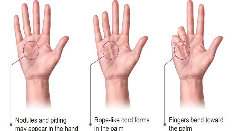 What are the Causes and Risks of Dupuytren's Contracture?